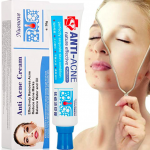 Migliore crema per acne e brufoli